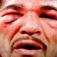 Antonio Margarito's Face Deformed After The Fight