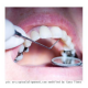 FDA to Recheck Dental Fillings